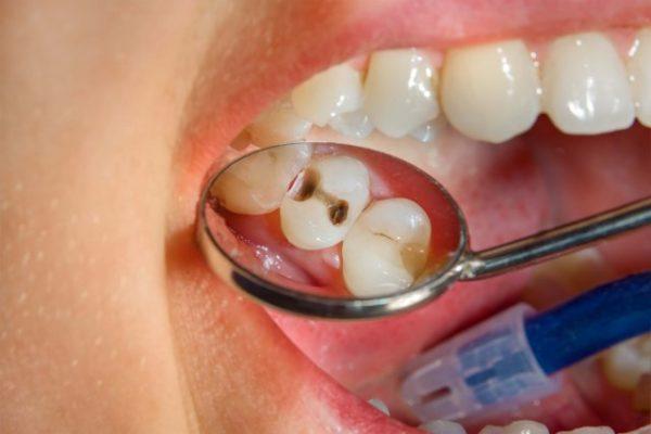Кариес зубов - что делать?